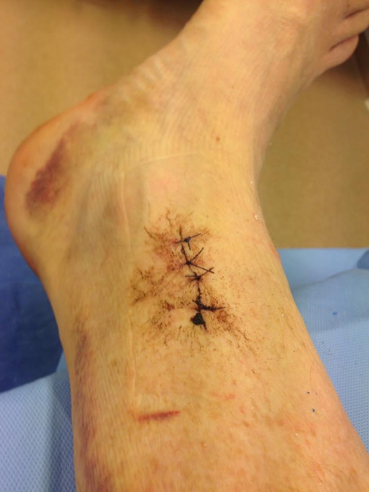 Operation 2, här plockades benet ut